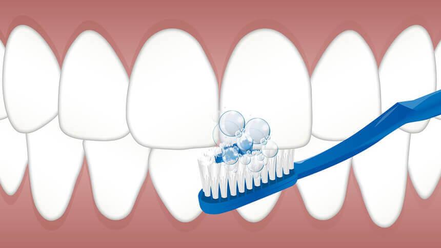 歯のメンテナンスで、白い歯を維持しよう