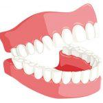 義歯の種類や治療期間・治療費